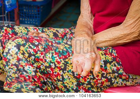 Closeup Hands Of Old Woman Suffering From Leprosy, Amputated Hands.