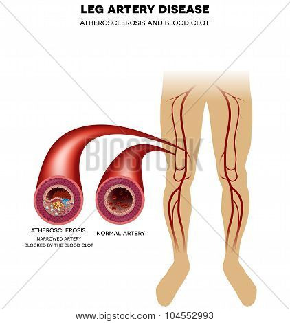 Leg Artery Disease, Atherosclerosis