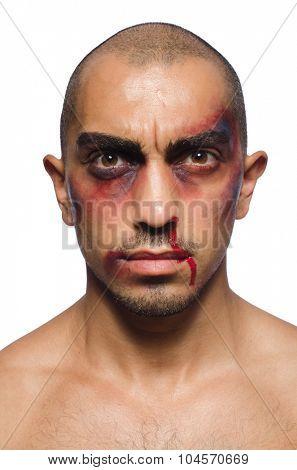Badly beaten man isolated on white