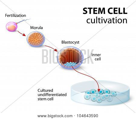 Stem cell cultivation. In Vitro Fertilization of the egg by a sperm outside the body. After several days they develop into undifferentiated stem cells. poster
