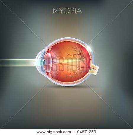 Myopia, Vision Disorder