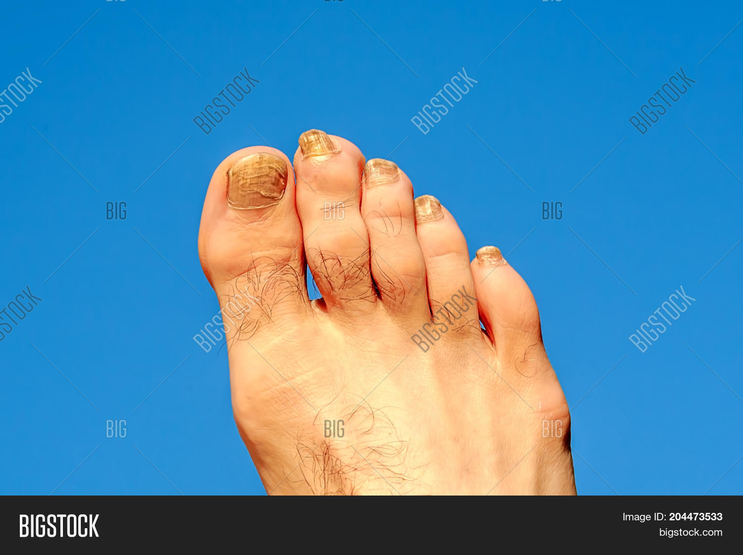 Toes Male Foot Image & Photo (Free Trial) | Bigstock