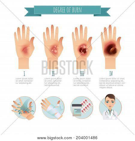 Degree of skin burns. Burns Treatment. Vector infographic. Flat Illustration for websites, brochures, magazines, web