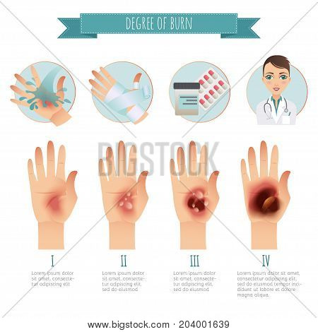 Burns Treatment. Degree of skin burns. Vector infographic. Flat Illustration for websites, brochures, magazines, web