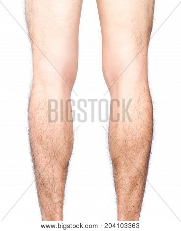 Closeup back of legs men skin and hairy with white background health care and medical concept