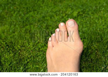 Hallux valgus, bunion in foot on grass background