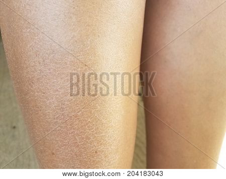 close up of a woman's dry flaky itchy legs