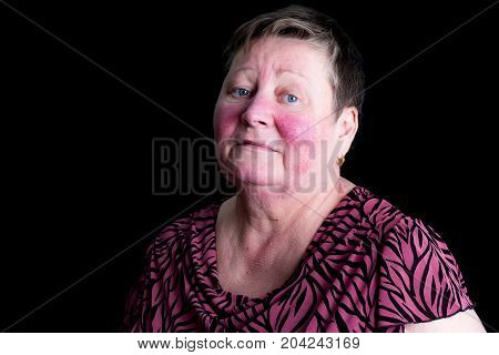 Unhappy, Depressed Senior Woman With Rosacea Skin Desease, Studio Portrait, Colors Manipulated