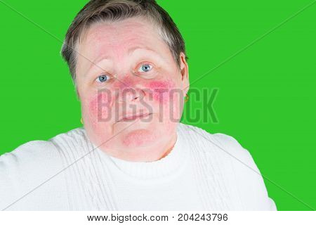 Rosacea, Facial Skin Disorder, Portrait Of Unhappy Elderly Woman
