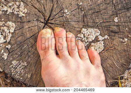 Toes of male foot, infected with a nail fungus on a gray cracked stump covered with white mold fungi.