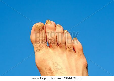 Toes of male foot infected with a nail fungus on a background summer blue sky.