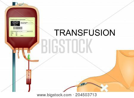 vector illustration of a donor blood transfusion to the patient through the subclavian catheter