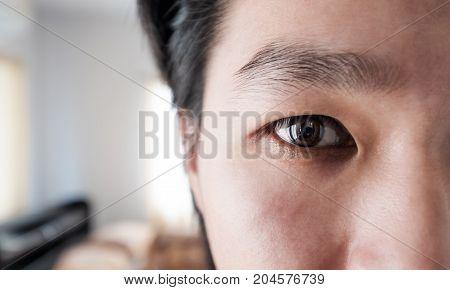 Close up Asian man eye, black eye socket