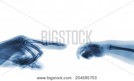 X-ray Adult's Hand Point Finger At Left Side And Baby's Hand At Right Side. Blank Area At Upper Side