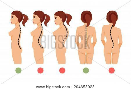 Types of deformation of the spine Scoliosis lordosis kyphosis. Correct and incorrect posture. Vector illustration