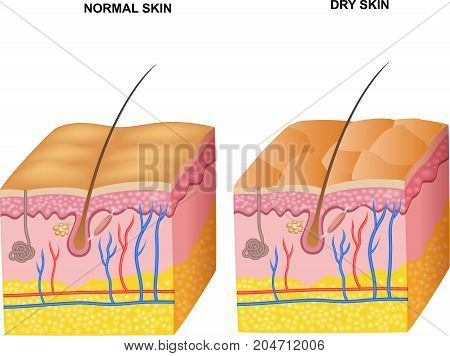 Illustration of The layers normal skin and dry skin