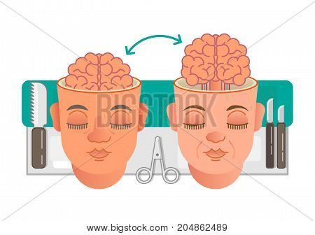 Two illustrated heads showing brain transplantation conceptual illustration