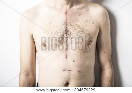 Scar from open heart surgery, where the sternum was cut in two, and the rib cage sprung. Below the scar holes show where the drains and pacemaker cables emerged. Image taken 24 days following surgery