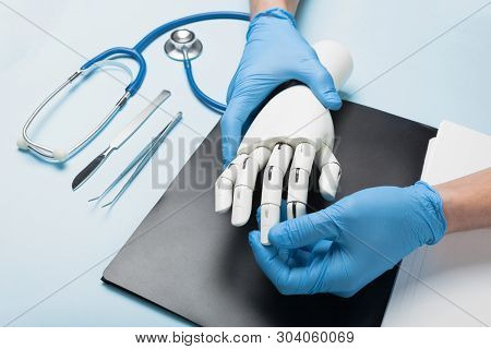 Mechanical Prosthetic Arm For Disabled. Consultation With Doctor.