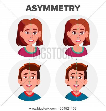 Eyes Asymmetry Of Character Man And Girl Vector. Young Boy Male And Woman Female Ptosis Eyelid Asymm