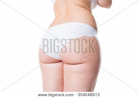 Overweight Woman With Fat Legs And Buttocks, Obesity Female Body Isolated On White Background