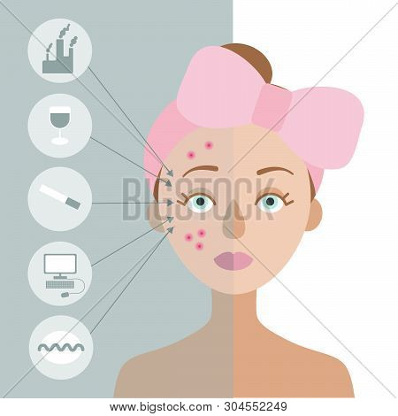 Girl With A Pink Bow On Her Head. One Part Of Her Skin Is Healthy, The Other Is Problematic. On The