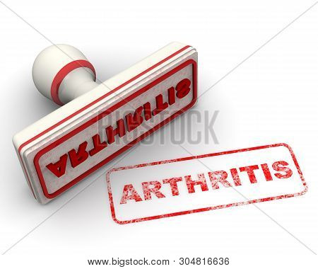 Arthritis. Seal And Imprint. Red Rubber Stamp And Red Print Arthritis On White Surface. Isolated. 3d