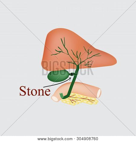Stone Bile Duct. Gallbladder, Duodenum, Pancreas, Bile Ducts. Vector Illustration On A Gray Backgrou