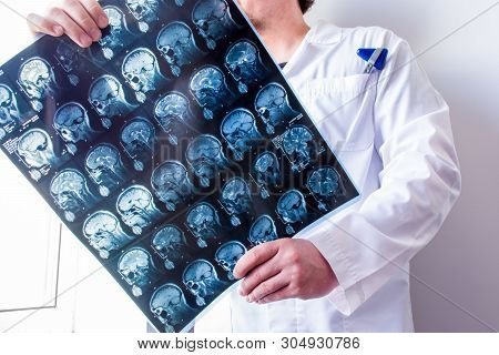 Neurologist Or Neurosurgeon Upright Holding Mri Brain Scanning Viewing And Exploring It For Patholog