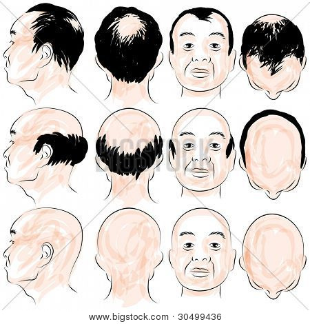 An image of an asian male pattern baldness set.