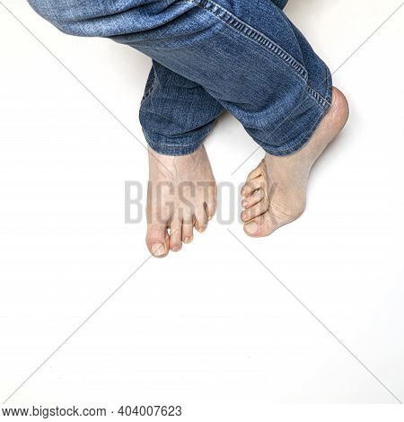 A Man With Bare Feet Ona White Surface