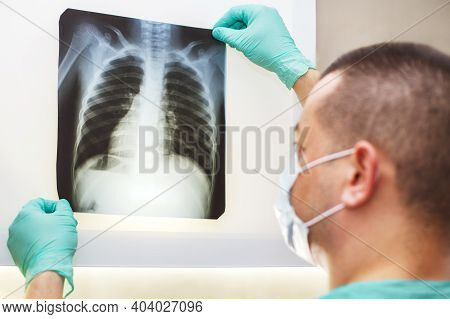 Man Hand Holding A Lungs Radiography Isolated On A White Background. Doctor Wearing Mask And Gloves