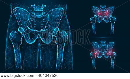 Bones Of The Pelvis And Hip, Human Anatomy. Pelvic And Hip Injuries. X Ray Of The Hip Joint Made Of