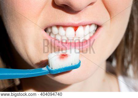Woman With Bleeding Gums During Teeth Brushing. Hard Toothbrush Problem. Periodontal Disease, Avitam