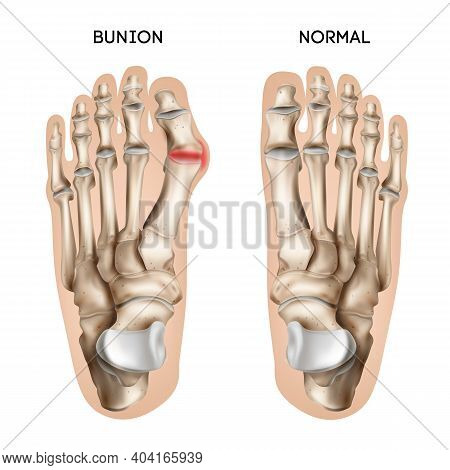 Realistic Bunion Foot Composition With Editable Text Captions And Views Of Normal And Damaged Human