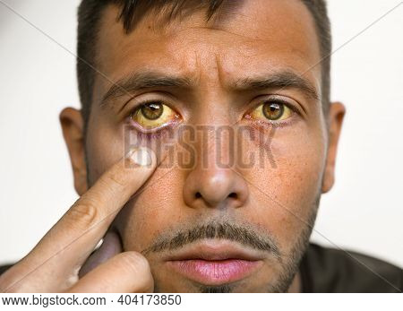 Young Man With Yellowish Eyes And Skin. Sign Of Problems With Health And Liver. Symptoms Of High Bil