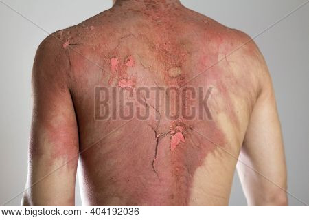 Man With A Severe Burn All Over His Body. Close Up. Isolated On A Gray Background.