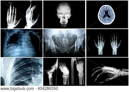 Collage Of Many X-rays. Very Good Quality / Many Others X-ray