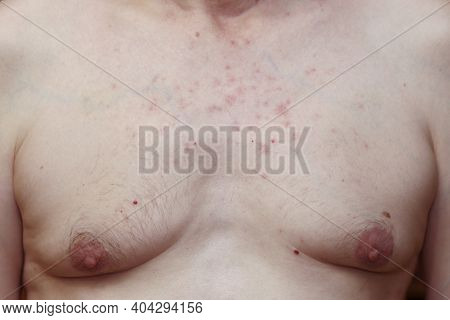 Skin Reaction On A Man Chest After Chemotherapy. Allergic Reaction. Allergic Rash On Chest Skin