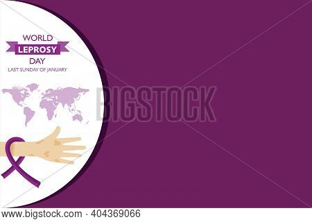 World Leprosy Day Observed On Last Sunday Of January Every Year Stock Vector