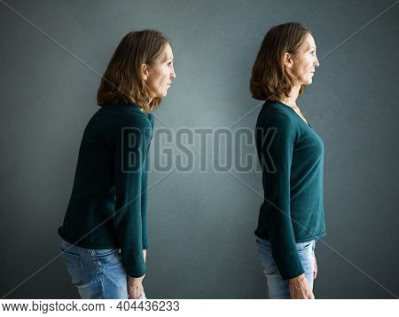 Before And After Slim Body Back Pain Posture Training