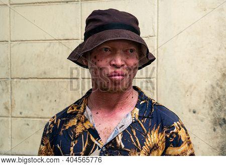 Dar Es Salaam - Tanzania - January 2020: Portrait Of Unidentified Male Albino Worker On A Market In