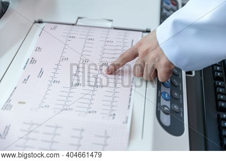 Doctor Holding A Cardiogram Test. Doctor With Electrocardiogram Equipment Making Cardiogram Test To