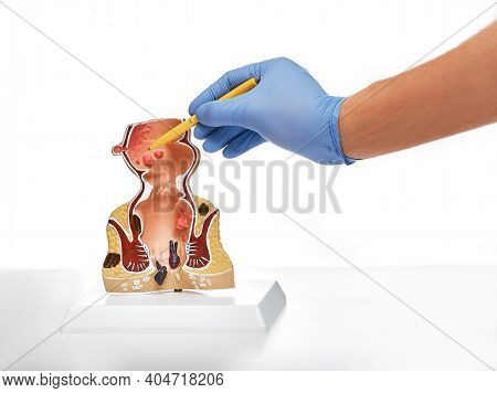 Rectum Pathologies On An Anatomical Model, Isolated On White. Treatment Of Rectal Diseases, Hemorrho