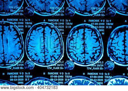 Mri Scan Of The Brain. Magnetic Resonance Imaging Scan