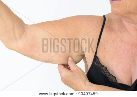 Senior Woman Showing Flabby Arm, Effect Of Aging