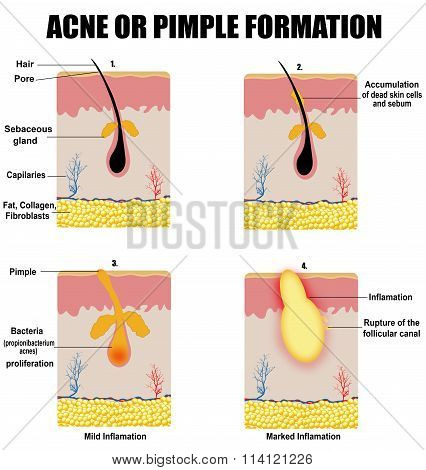 Formation Of Skin Acne Or Pimple