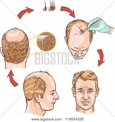medical drawing of a hair plantation