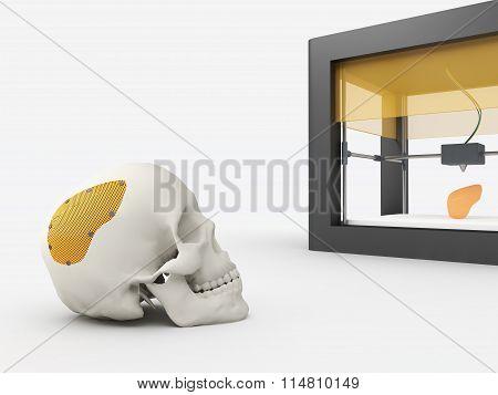 3d printed cranium