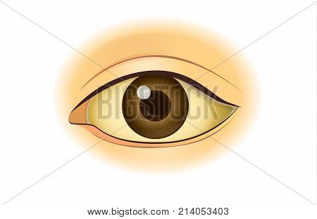 Yellowing in the human eye. Illustration about symptom from digestion problem.